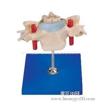 【人体骨骼模型价格_颈椎附脊髓和脊神经放大模型骨骼模型_颈椎附脊